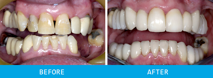 First Before and after dental implants case study at our Watford dentist, Senova Dental Studios in Watford, Hertfordshire
