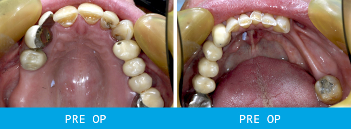 Second Before and after dental implants case study at our Watford dentist, Senova Dental Studios in Watford, Hertfordshire