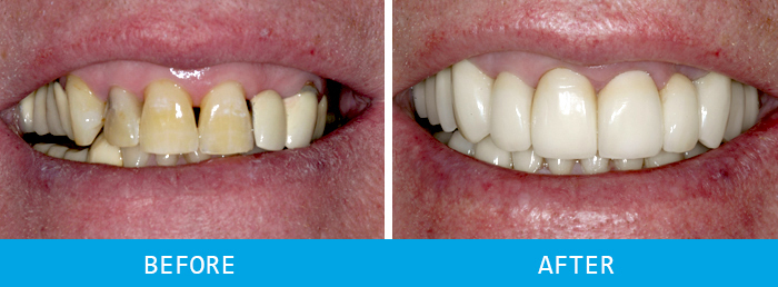 Third Before and after dental implants case study at our Watford dentist, Senova Dental Studios in Watford, Hertfordshire