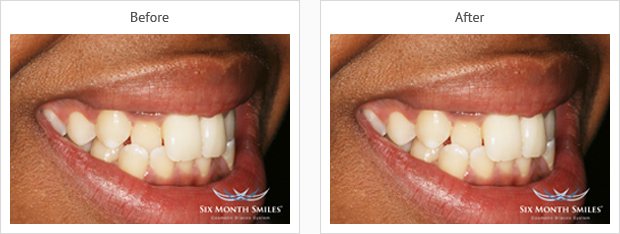 Six Month Smiles Case review three