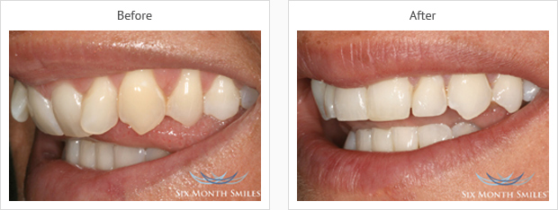 six month smile case review one
