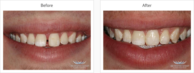 Six month smiles results