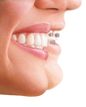 Invisalign versus conventional braces