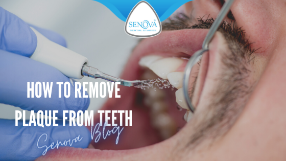 How to remove plaque from teeth