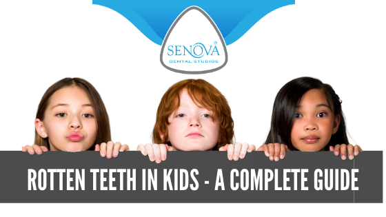 Rotten Teeth In Kids - A Complete Guide