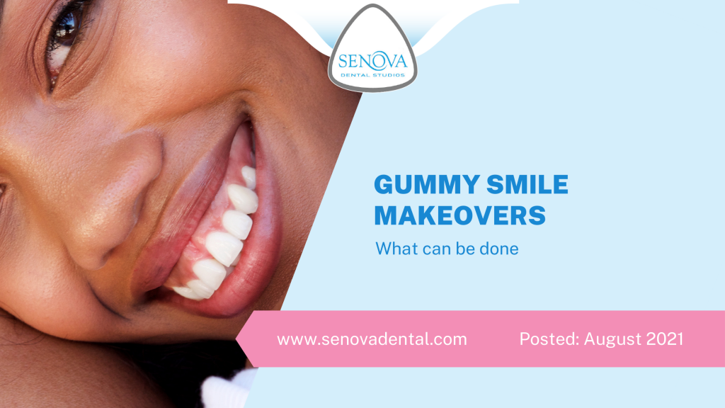 Gummy Smile Makeovers - What Can Be Done?