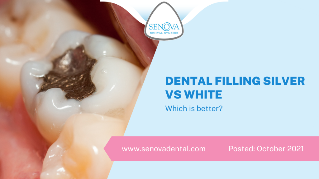 Dental Filling Silver Vs White - Which Is Better?